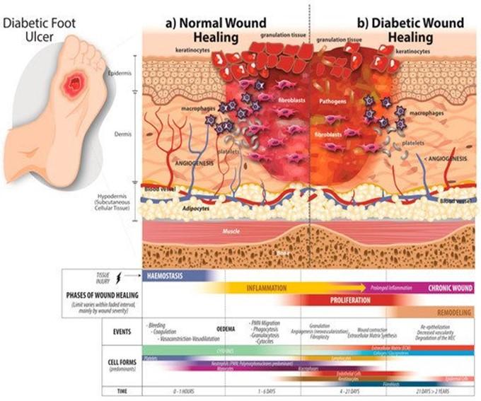 Diabetic Foot Ulcer Prediction